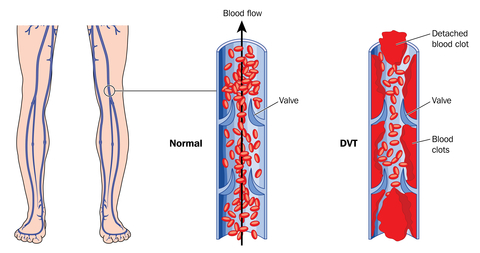 Deep Vein Thrombosis Diagram