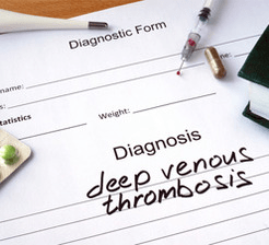 Deep_venous_thrombosis_diagnosis
